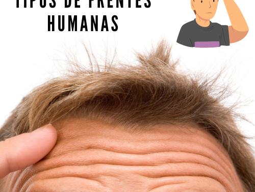 Tipos de frentes humanas